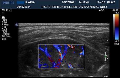 Foyers de pneumopathie chez l'enfant : localisations difficiles  Ilaria écho3