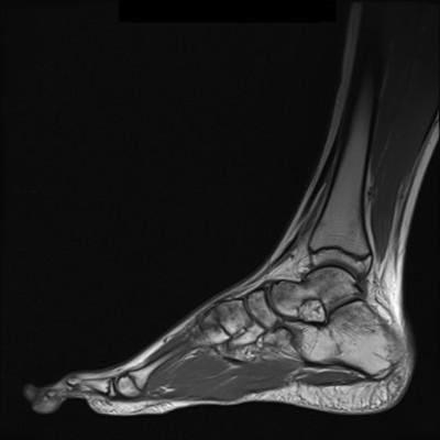Maladie de Ledderhose/Fibromatose superficielle plantaire IRM Pied gauche sagittale T1