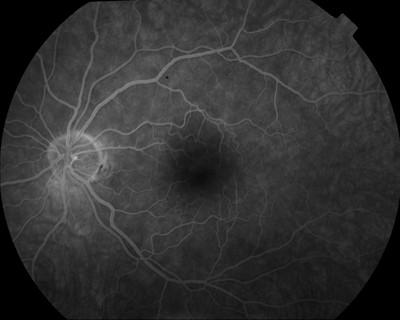 Occlusion de la branche temporale inférieure de l'artère centrale de la rétine OD Angiographie Fluo OG