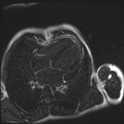 Non compaction du ventricule gauche TrueFISP_PSIR_2D_10Slice_TI300 4CAV_MAG