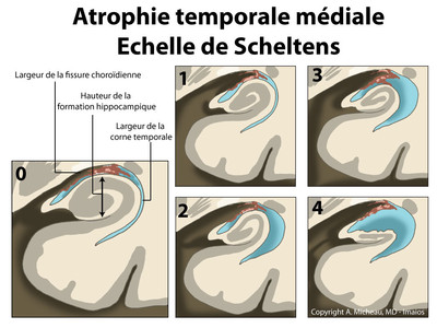 Atrophie hippocampique (Scheltens) Classification de Scheltens - Schéma