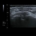 Tendinopathie biceps  Echographie Membre supérieur