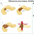 Pancreas cancer staging TNM-staging-pancreas-cancer