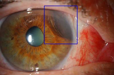 Mélanome iris et corps ciliaire LAF ODG
