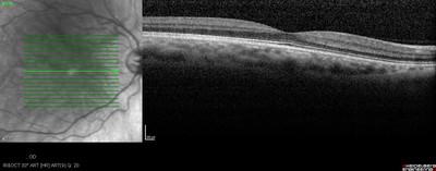 Cataracte sous capsulaire postérieure et astigmatisme cornéen - Implantation multifocale torique OCT maculaire OD