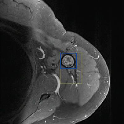 Enchondroma of the proximal humerus Axial T1 Fat Sat Gadolinium MRI