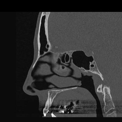 Dysplasie fibreuse cranio faciale gauche.  TDM Crâne Sagittal Fenêtre Os