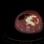 Metastatic extraskeletal Ewing's sarcoma Fusion