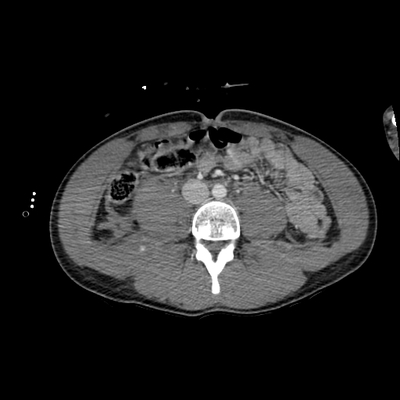 Cranioencephalic trauma, Facial fracture, Thoracic injuries, Pelvic fracture, Spleen and renal trauma Abdomen CT,  Portal venous phase, Axial plane