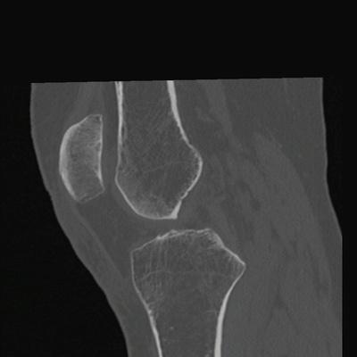 Fracture trabéculaire sous-chondrale  TDM genou Sagittal MPR