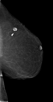 Late recurrence of cancer of the left breast  LML Acquisition Tomo
