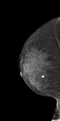Intermediate grade ductal carcinoma in situ  RML Acquisition Tomo