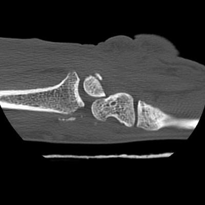 Luxation trans scapho-rétro-lunaire du carpe type III Sagittal
