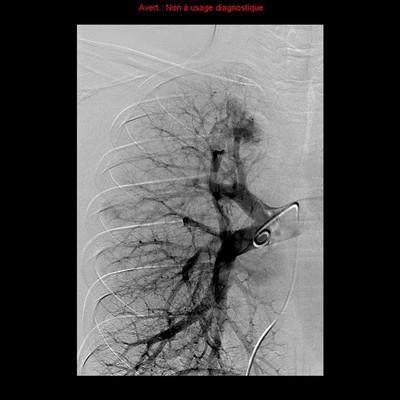 Maladie de Rendu Osler avec malformations artérioveineuses pulmonaires embolisées Artériographie globale droite