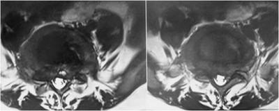 kyste anevrysmal de L5: évolution radiologique Image10