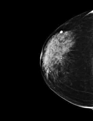 Carcinome canalaire in situ de grade intermédiaire RCC