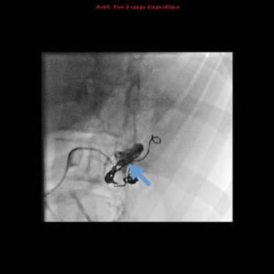 Rupture splénique spontanée chez une patiente enceinte  Interventionnel