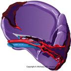 Splenic injuries splenic-injury-AAST-injury-scale