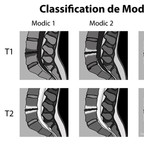 Modic: modifications des plateaux vertébraux en IRM sur discopathie dégénérative modic-classification-schema
