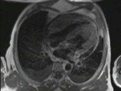 Localisation myocardique d'un lymphome B à grandes cellules tse_9_db_t1