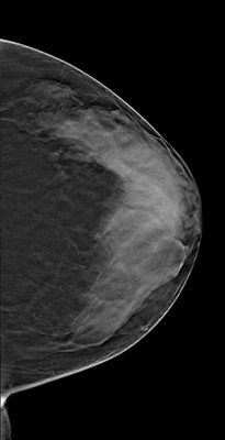 Doubt regarding architectural distortion of the right upper lateral quadrant, corresponding to superimpositions with tomosynthesis. LCC Tomosynthèse