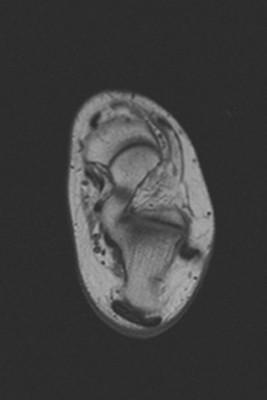 Syndrome du canal tarsien secondaire à un kyste arthro-synovial de l'articulation sous talienne. Fissuration partielle à l'enthèse du tendon calcanéen. T1 Axial