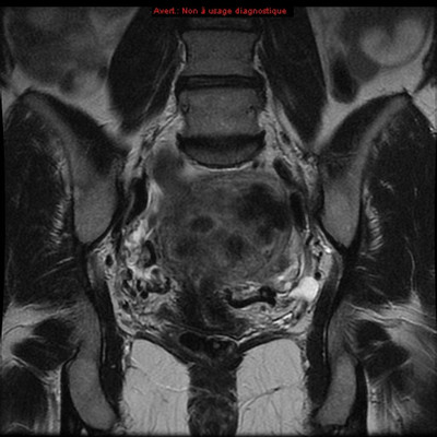 Embolisation de fibromes utérins  IRM Pelvis - Pré-embolisation