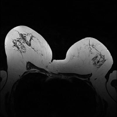 Carcinome canalaire infiltrant de grade SBR 2 T2