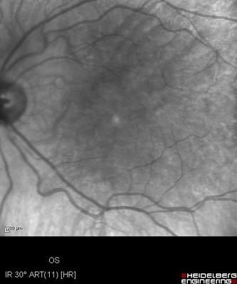 Cataracte sous capsulaire postérieure et astigmatisme cornéen - Implantation multifocale torique Clichés IR ODG