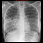 Tuberculose secondaire pulmonaire active  Radiographie Thorax Face