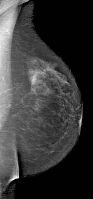 Breast asymmetry with a small nodule, the aspect of which suggests a fibroadenoma within denser glandular tissue on the right. LMLO Acquisition Tomo