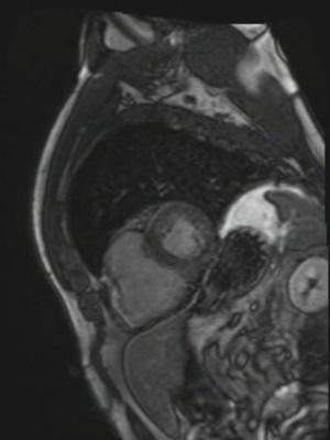 Dysplasie arythmogène du ventriule droit (DAVD) : critère majeur en IRM TI-Scout 256