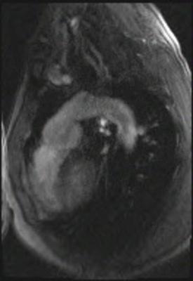Correction complète de Fallot avec dilatation des cavités droites et insuffisance pulmonaire fl5_150_ip_retro_bh_iPAT@c