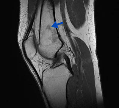 Moelle rouge  IRM Membre inférieur Sagittal T1