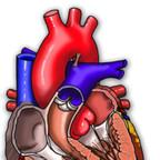 Dysplasie arythmogène du ventricule droit   Dysplasie arythmogène du ventricule droit