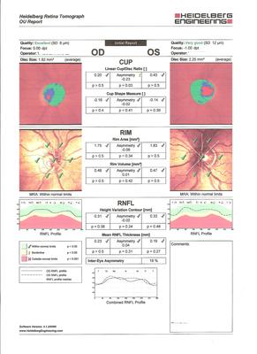 Occlusion de la branche temporale inférieure de l'artère centrale de la rétine OD HRT