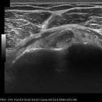 Large fissure transfixiante du tendon du muscle supra-épineux Série axiale long biceps