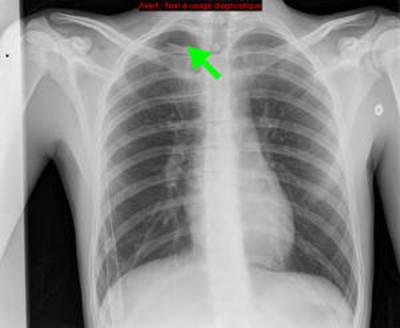 Pneumothorax droit sur blebs (bulle)  Radiographie Thorax Face Post opératoire