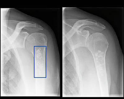 Enchondroma of the proximal humerus A-P and lateral radiographs