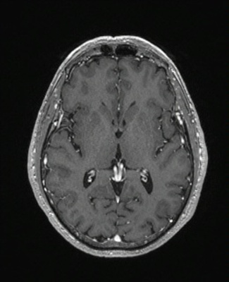Schwannome cochléovestibulaire (neurinome de l'acoustique) T1 3D GADO AXIAL