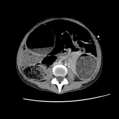 Rectal obstruction due to endometriosis Portal-phase axial CT