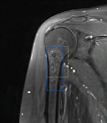 Enchondroma of the proximal humerus Coronal T1 Fat Sat Gadolinium MRI