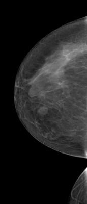 Stable fibroadenomas and hamartoma in the right breast, ACR 2. RCC Acquisition Tomo