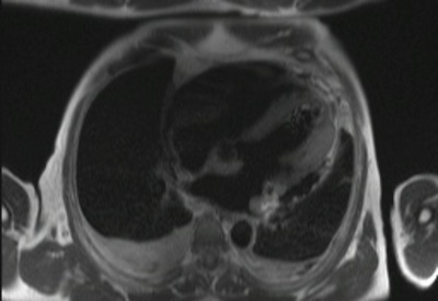 Localisation myocardique d'un lymphome B à grandes cellules haste_16-sl_tra_db_2bh