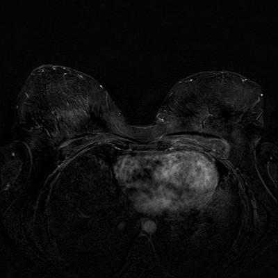 Récidive tardive de cancer du sein gauche Soustraction 3 min