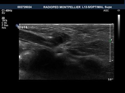 Hernie inguinale utéro ovarienne Echographie inguinale