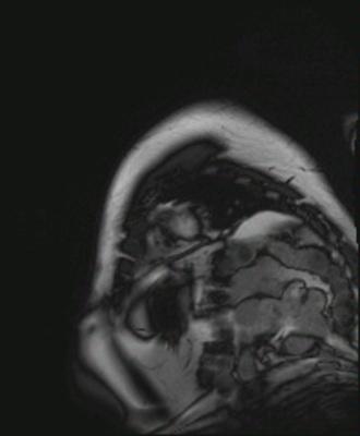 IDM antéro-septo-apical, non viable sans thrombus intracavitaire résiduel CINE TRUFI PA BALAYAGE_