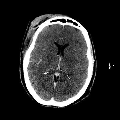 Arrêt circulatoire témoignant d'une mort encéphalique J-3 Axial MIP