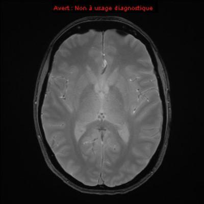 Méningiome de la selle turcique  IRM