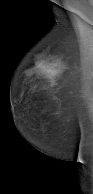 Breast asymmetry with a small nodule, the aspect of which suggests a fibroadenoma within denser glandular tissue on the right. RMLO Acquisition Tomo